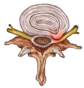 椎间盘突出症
